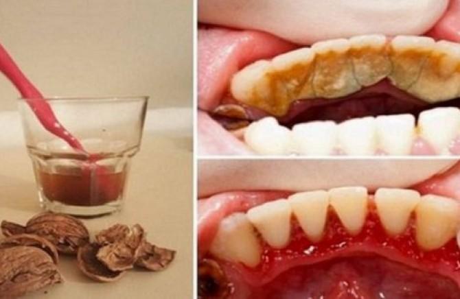 Cetkica za izbeljivanje zuba
